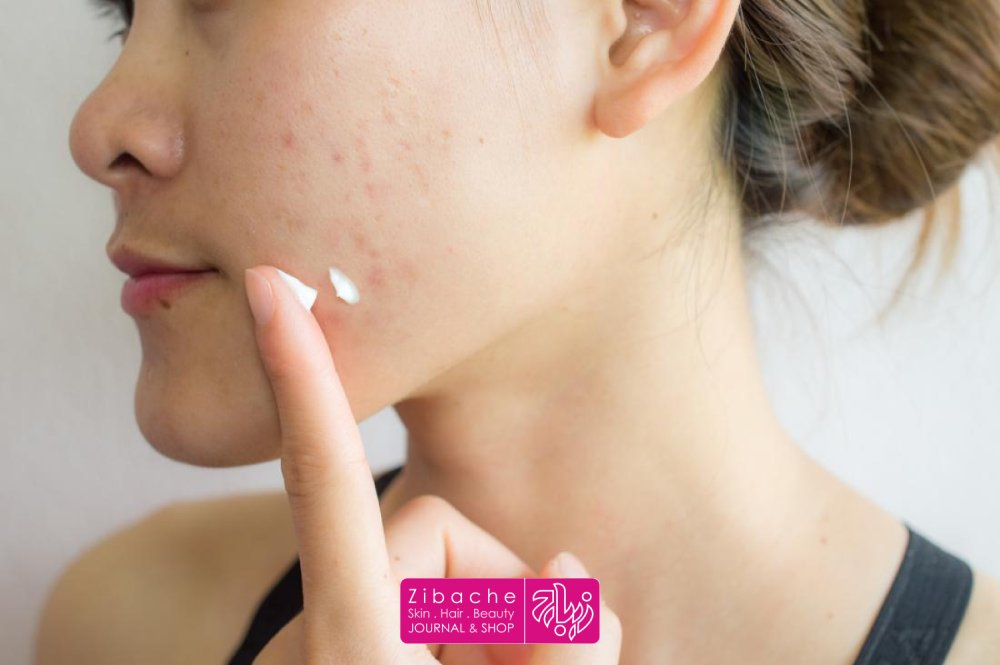 استفاده از محصولات درمانی نقطه ای برای لکه های صورت