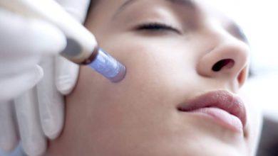 مزونیدلینگ پوست صورت چیست؟
