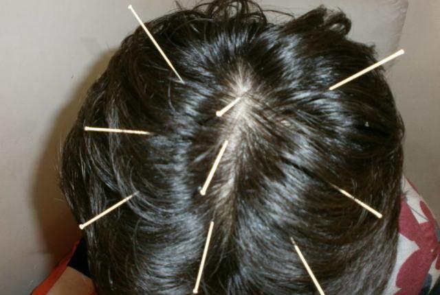 طب سوزنی در درمان ریزش مو