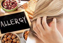 آیا حساسیت و آلرژی غذایی باعث ریزش مو میشود؟