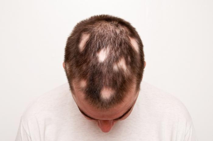 آلوپسی آره آتا و ریزش مو ناشی از حساسیت غذایی