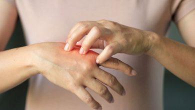 اگزمای دست و حساسیت پوستی