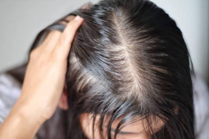 آیا چربی مو باعث ریزش میشود؟
