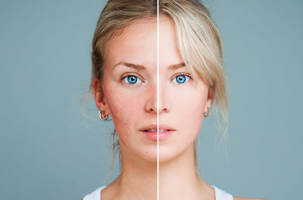 درمان سریع التهاب پوست صورت