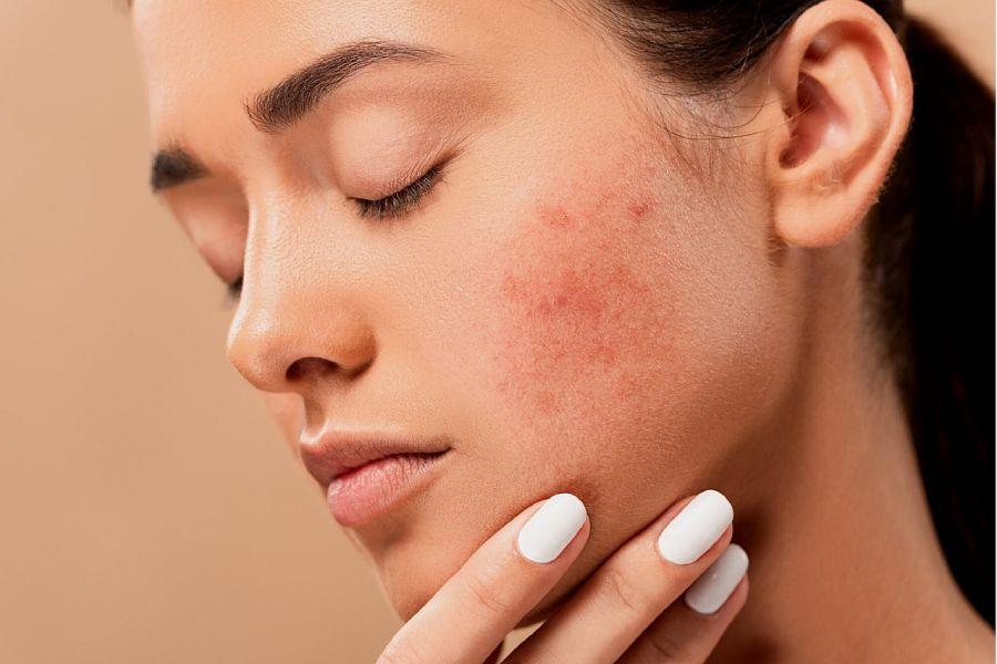 التهاب پوست صورت چیست؟