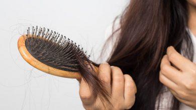 7 دلیل ریزش شدید مو و روش های درمان آن