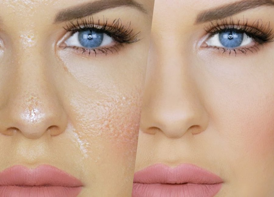 چرا پوست چرب میشود؟ روش های درمان و مراقبت از پوست و صورت چرب